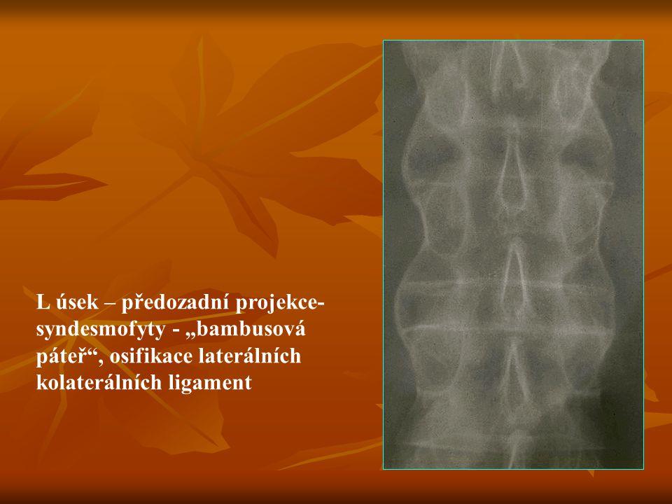 """L úsek – předozadní projekce- syndesmofyty - """"bambusová páteř"""", osifikace laterálních kolaterálních ligament"""