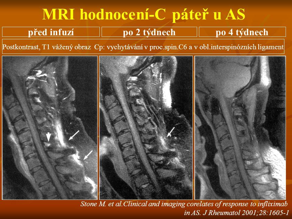 Stone M. et al.Clinical and imaging corelates of response to infliximab in AS. J Rheumatol 2001;28:1605-1 Postkontrast, T1 vážený obraz Cp: vychytáván