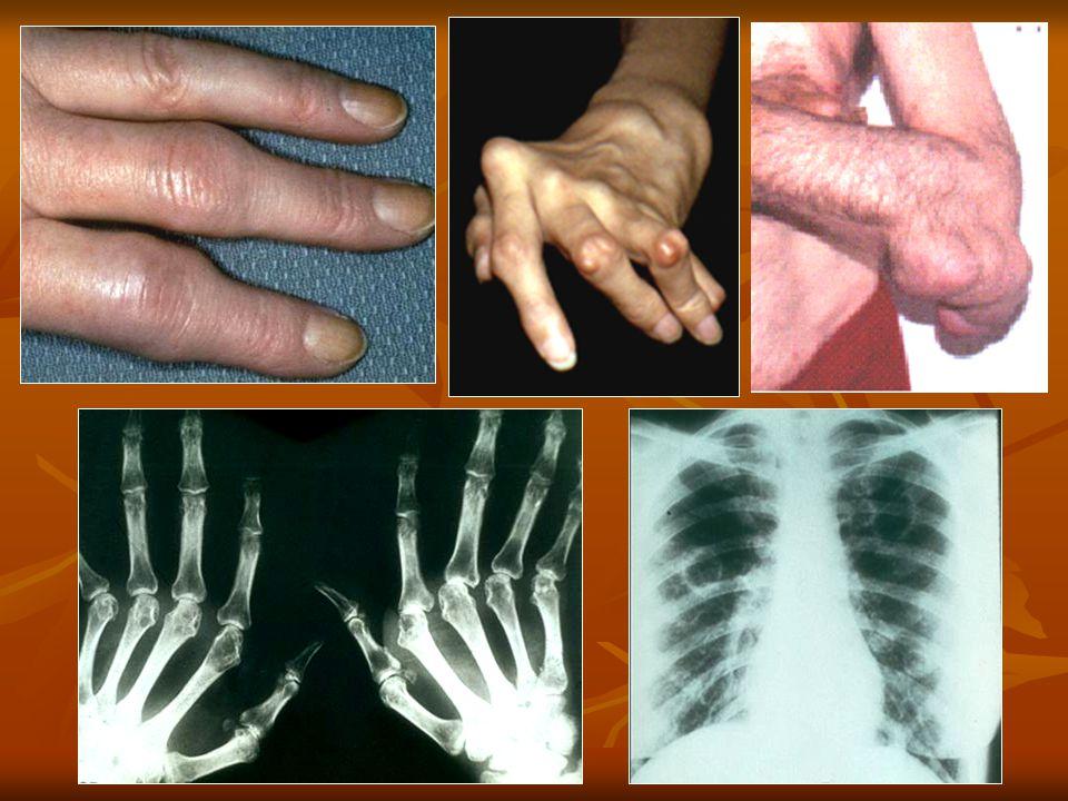 Intenzivní léčba časné RA Aktivní RA, RF posit.nebo anti CCP posit.