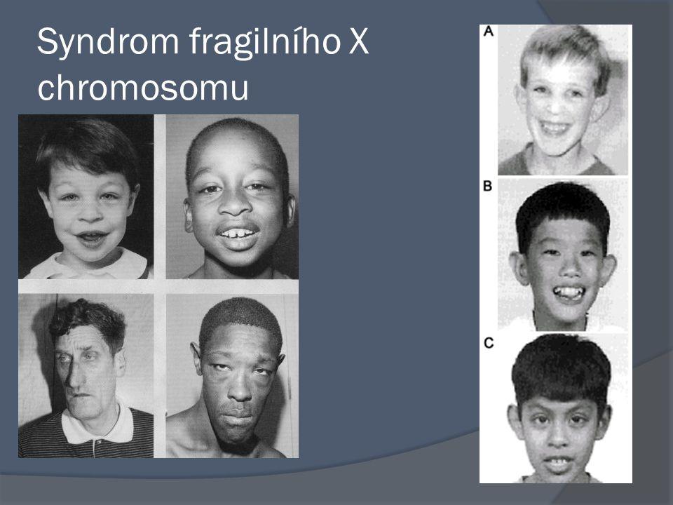 Choroby gonozomálně dědičné dominantní  Vitamin D rezistentní rachitis Křivice rezistentní na léčbu vitamínem D