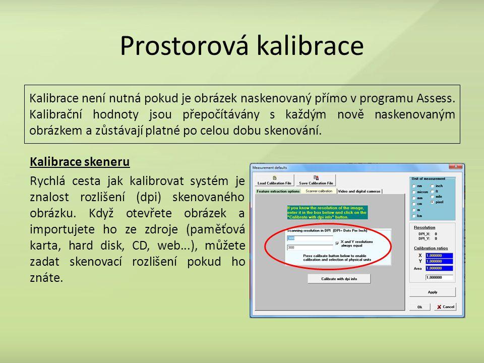 Prostorová kalibrace Kalibrace není nutná pokud je obrázek naskenovaný přímo v programu Assess. Kalibrační hodnoty jsou přepočítávány s každým nově na