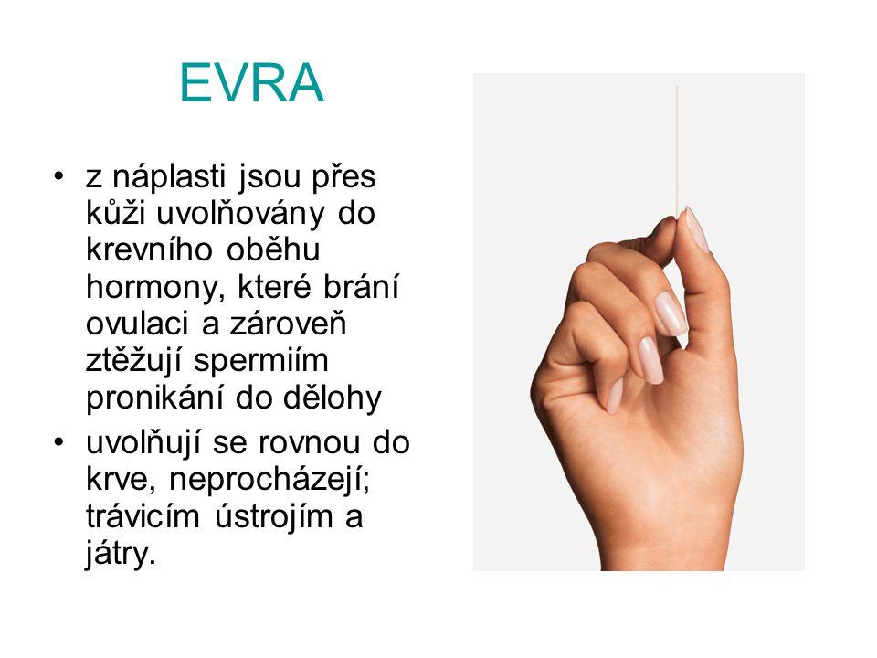 EVRA z náplasti jsou přes kůži uvolňovány do krevního oběhu hormony, které brání ovulaci a zároveň ztěžují spermiím pronikání do dělohy uvolňují se ro