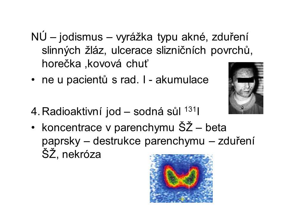 NÚ – jodismus – vyrážka typu akné, zduření slinných žláz, ulcerace slizničních povrchů, horečka,kovová chuť ne u pacientů s rad. I - akumulace 4.Radio