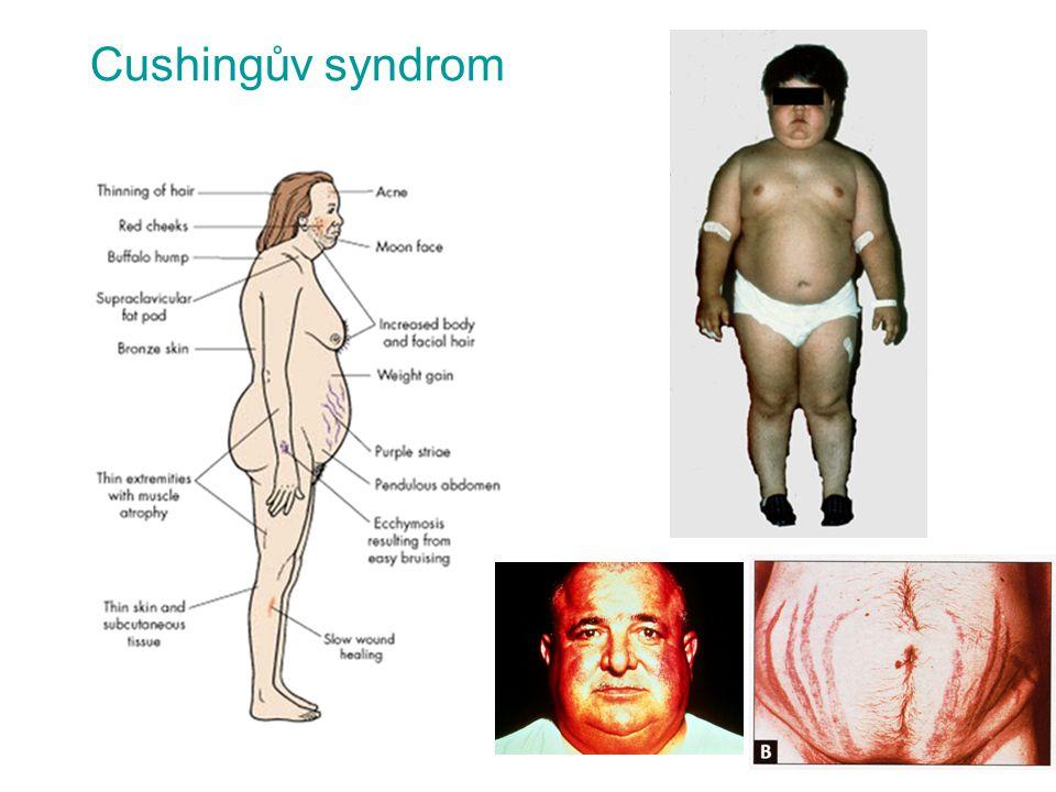 Cushingův syndrom
