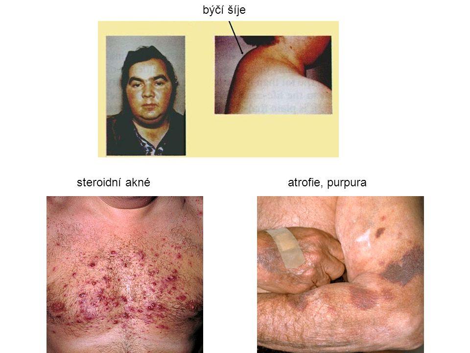 býčí šíje steroidní aknéatrofie, purpura