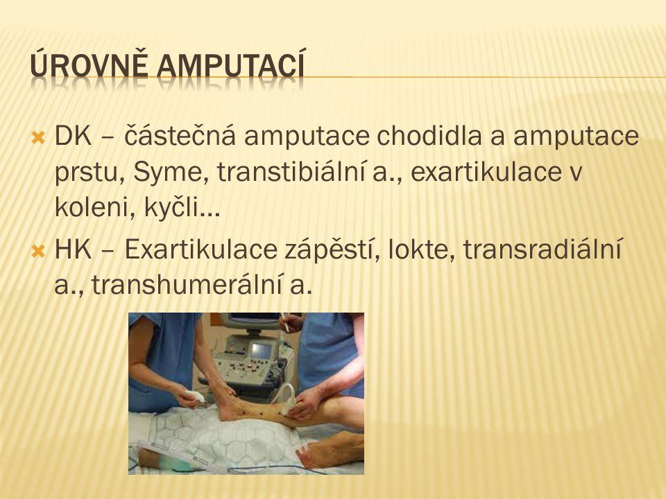  DK – částečná amputace chodidla a amputace prstu, Syme, transtibiální a., exartikulace v koleni, kyčli…  HK – Exartikulace zápěstí, lokte, transrad