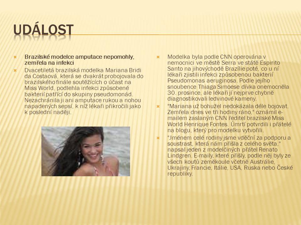  Brazilské modelce amputace nepomohly, zemřela na infekci  Dvacetiletá brazilská modelka Mariana Bridi da Costaová, která se dvakrát probojovala do