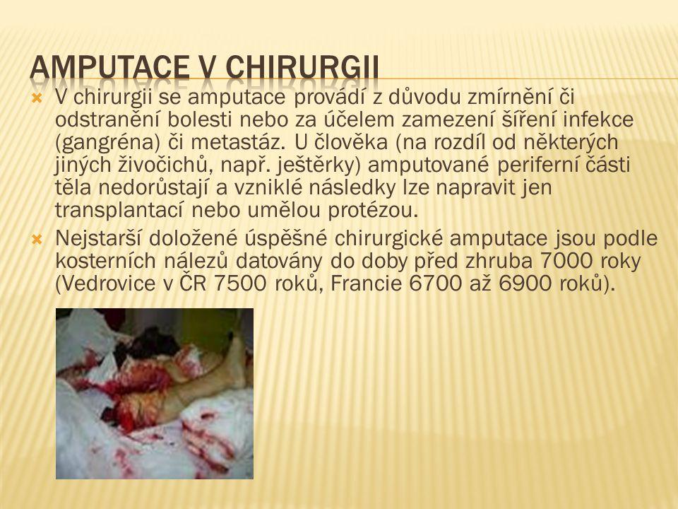  V chirurgii se amputace provádí z důvodu zmírnění či odstranění bolesti nebo za účelem zamezení šíření infekce (gangréna) či metastáz. U člověka (na