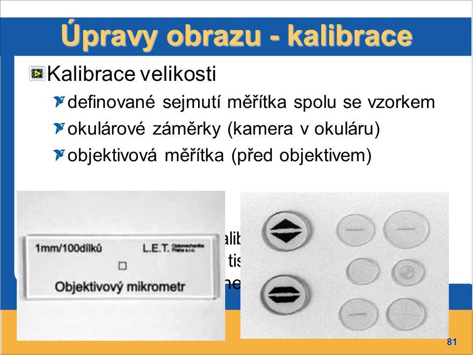 81 Úpravy obrazu - kalibrace Kalibrace velikosti definované sejmutí měřítka spolu se vzorkem okulárové záměrky (kamera v okuláru) objektivová měřítka