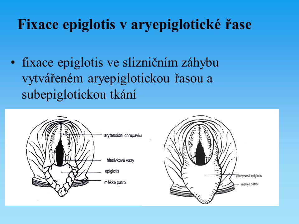 Fixace epiglotis v aryepiglotické řase fixace epiglotis ve slizničním záhybu vytvářeném aryepiglotickou řasou a subepiglotickou tkání