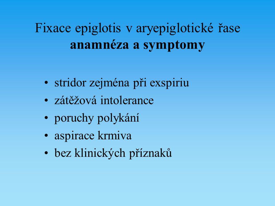 Fixace epiglotis v aryepiglotické řase anamnéza a symptomy stridor zejména při exspiriu zátěžová intolerance poruchy polykání aspirace krmiva bez klin