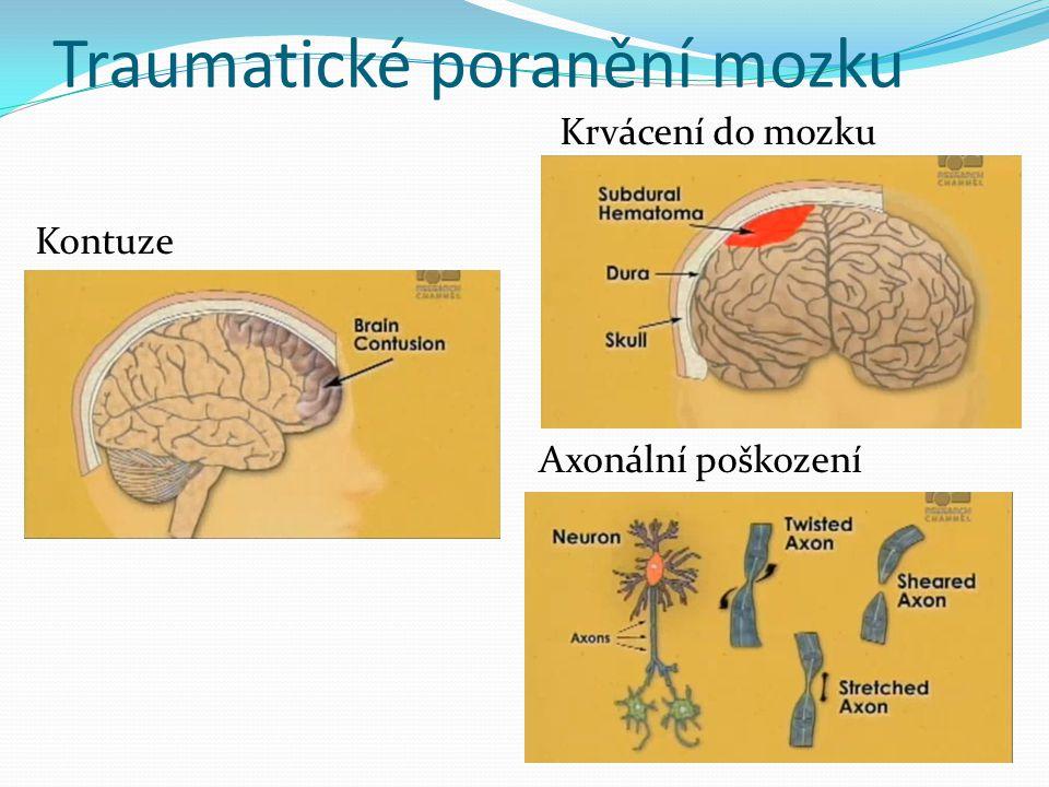 Traumatické poranění mozku Krvácení do mozku Kontuze Axonální poškození