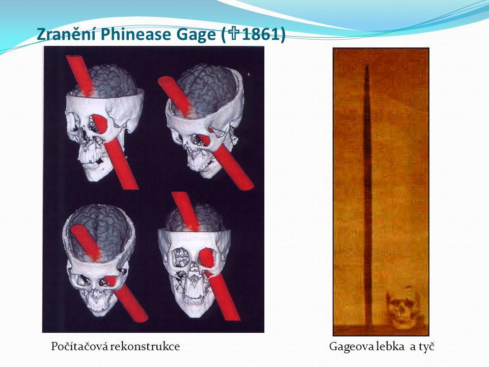 Zranění Phinease Gage (  1861) Počítačová rekonstrukce Gageova lebka a tyč