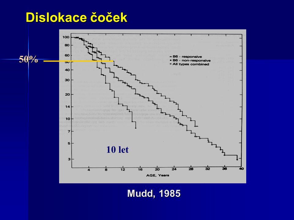 Mudd, 1985 Dislokace čoček 50% 10 let