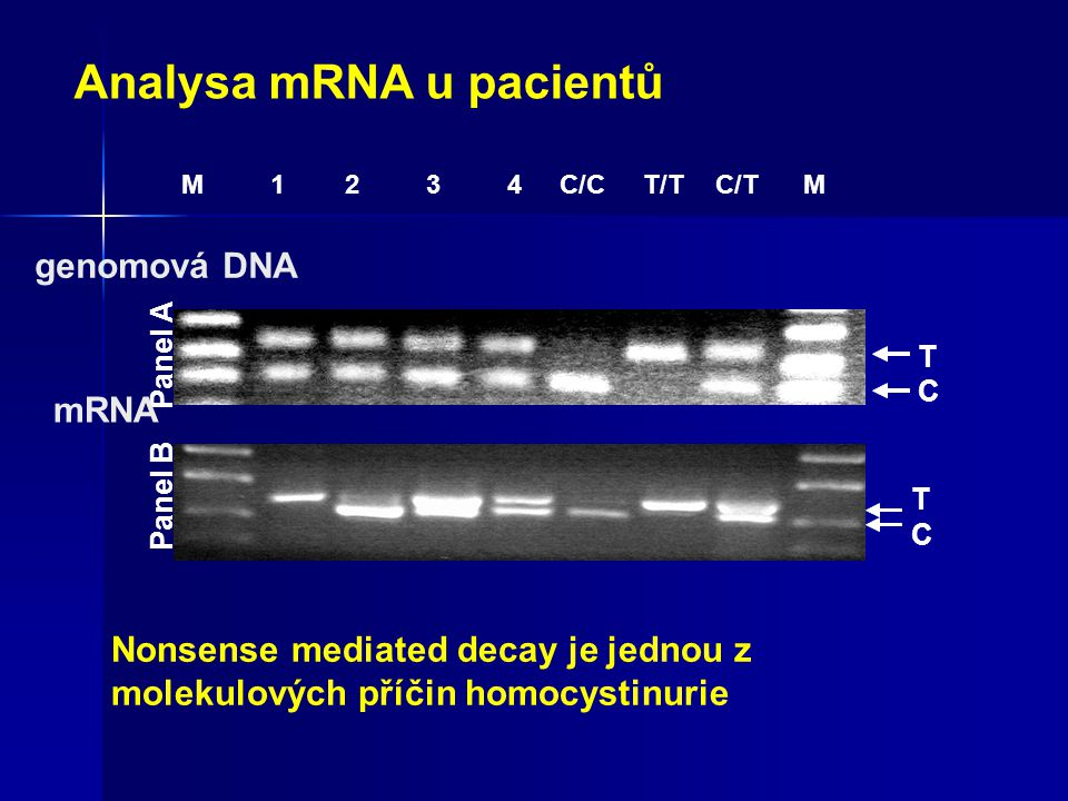 Analysa mRNA u pacientů M 1 2 3 4 C/C T/TC/T M Panel A T C genomová DNA Panel B T C mRNA Nonsense mediated decay je jednou z molekulových příčin homocystinurie