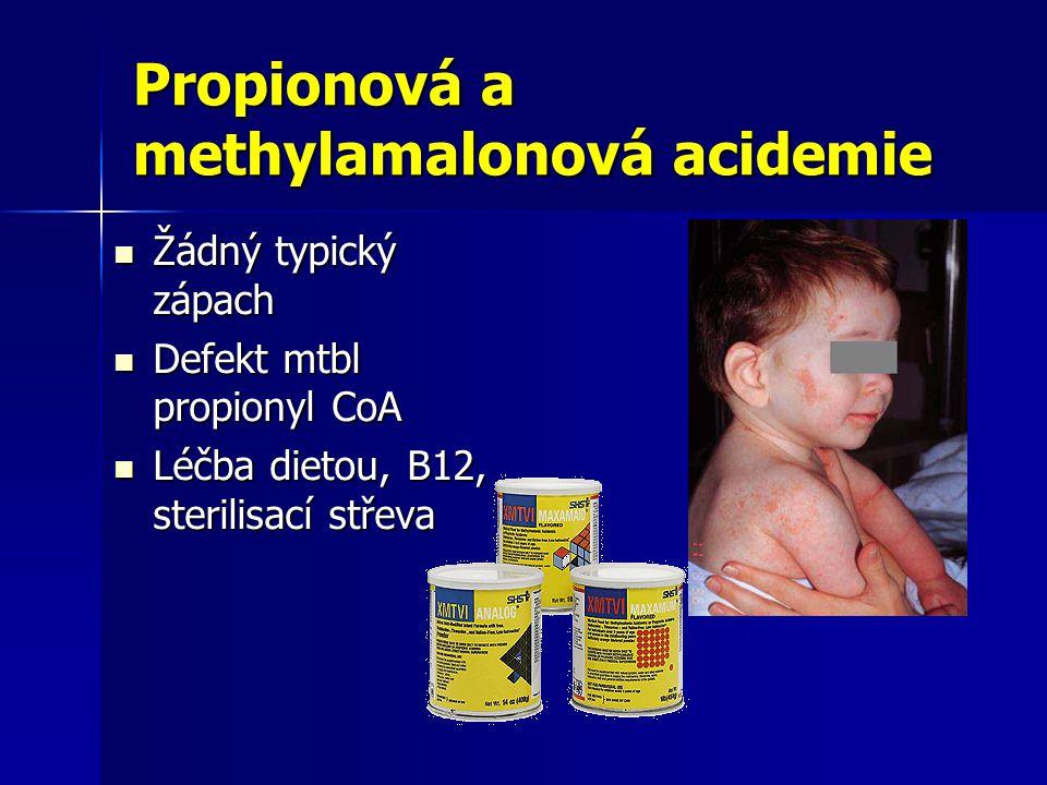 Propionová a methylamalonová acidemie Žádný typický zápach Žádný typický zápach Defekt mtbl propionyl CoA Defekt mtbl propionyl CoA Léčba dietou, B12, sterilisací střeva Léčba dietou, B12, sterilisací střeva