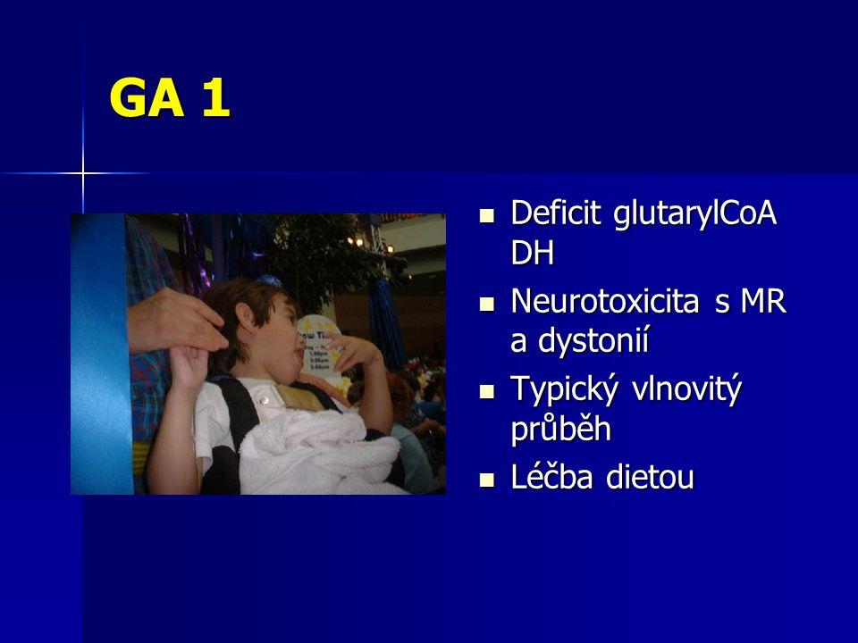 GA 1 Deficit glutarylCoA DH Deficit glutarylCoA DH Neurotoxicita s MR a dystonií Neurotoxicita s MR a dystonií Typický vlnovitý průběh Typický vlnovitý průběh Léčba dietou Léčba dietou