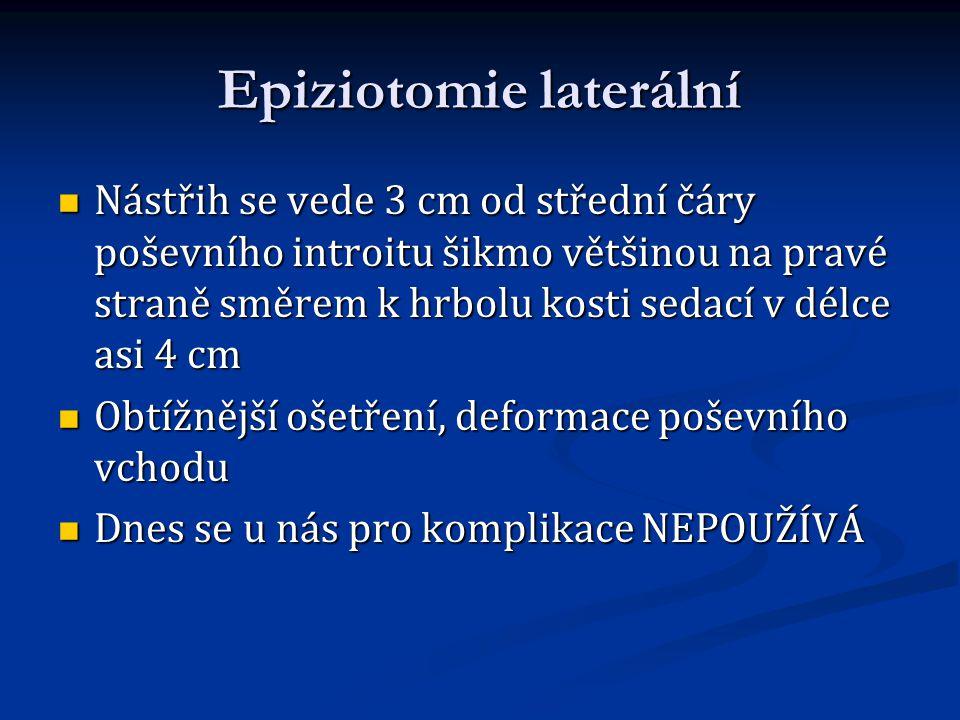 Epiziotomie laterální Nástřih se vede 3 cm od střední čáry poševního introitu šikmo většinou na pravé straně směrem k hrbolu kosti sedací v délce asi