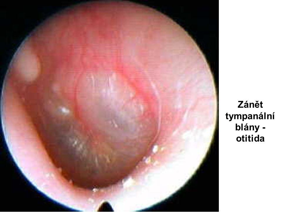 Zánět tympanální blány - otitida