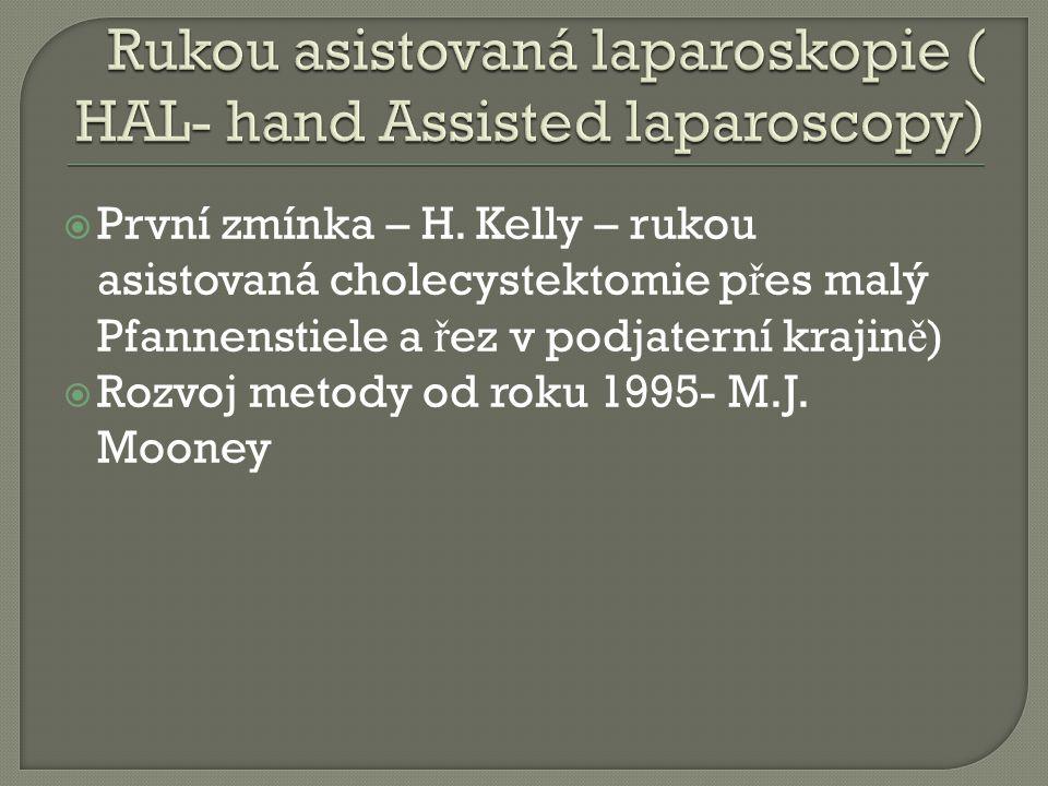  První zmínka – H. Kelly – rukou asistovaná cholecystektomie p ř es malý Pfannenstiele a ř ez v podjaterní krajin ě )  Rozvoj metody od roku 1995- M