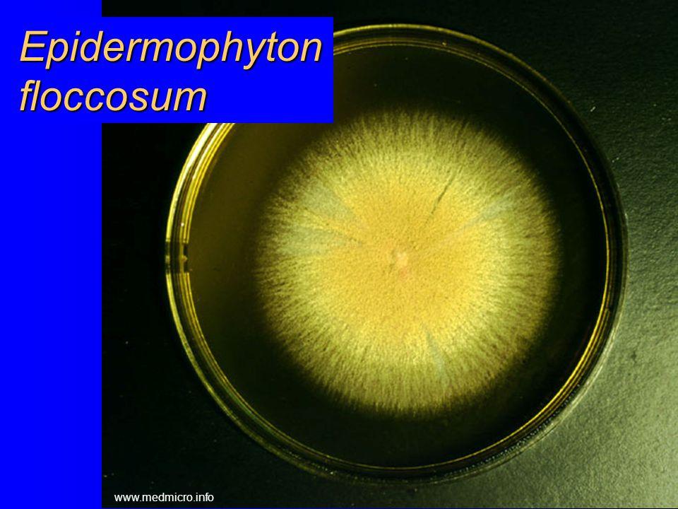 Trichophyton rubrum www.medmicro.info