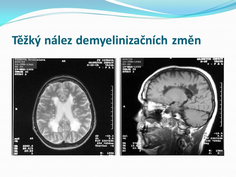 Těžký nález demyelinizačních změn