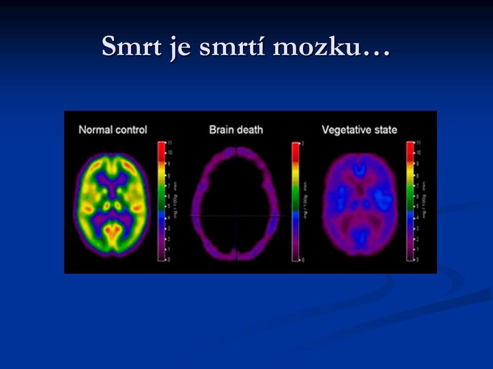 Smrt je smrtí mozku…