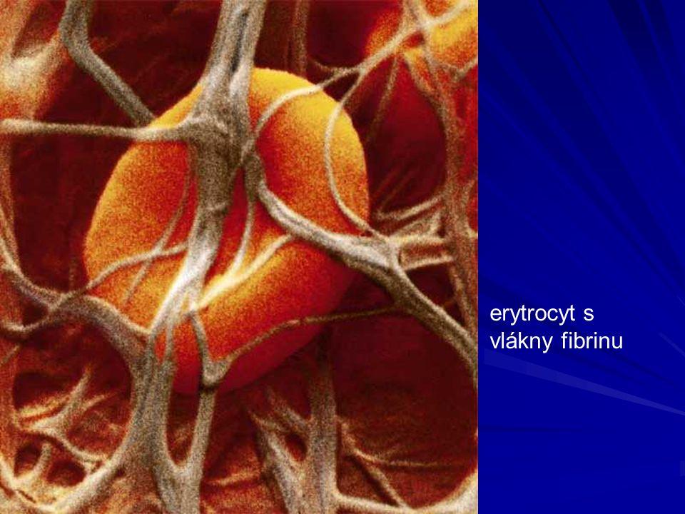erytrocyt s vlákny fibrinu
