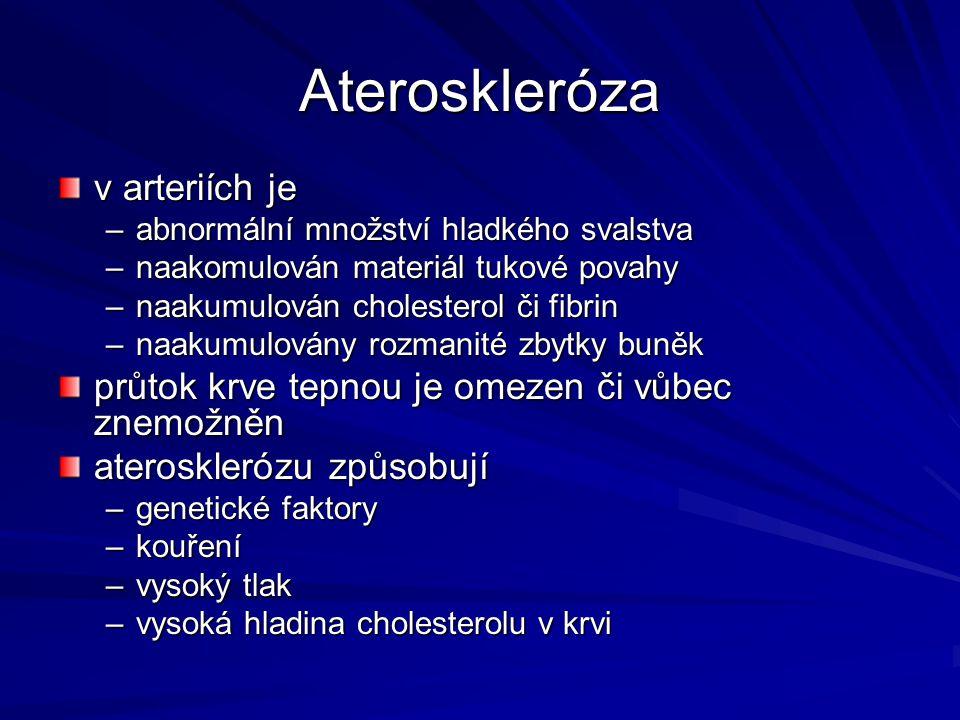 Ateroskleróza v arteriích je –abnormální množství hladkého svalstva –naakomulován materiál tukové povahy –naakumulován cholesterol či fibrin –naakumul