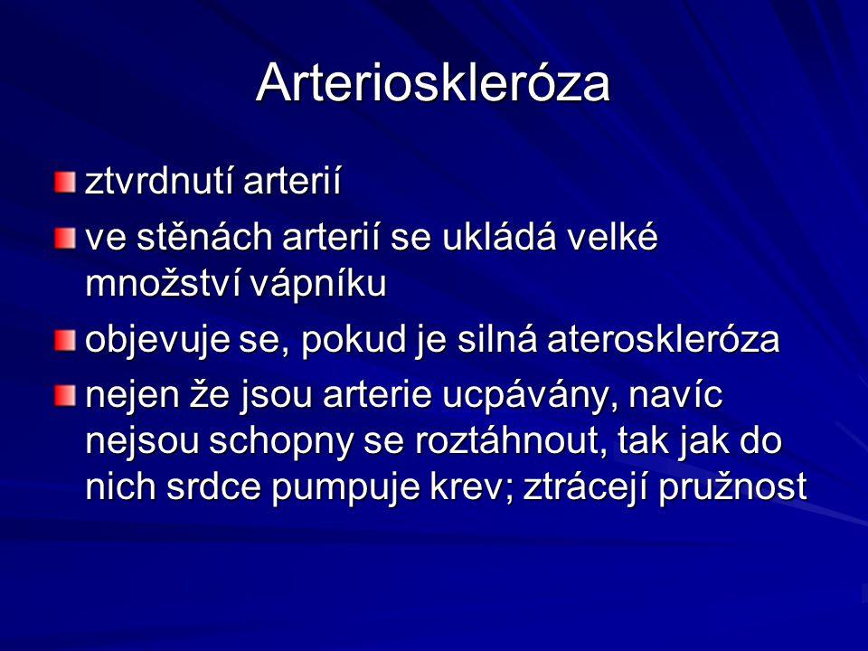 Arterioskleróza ztvrdnutí arterií ve stěnách arterií se ukládá velké množství vápníku objevuje se, pokud je silná ateroskleróza nejen že jsou arterie