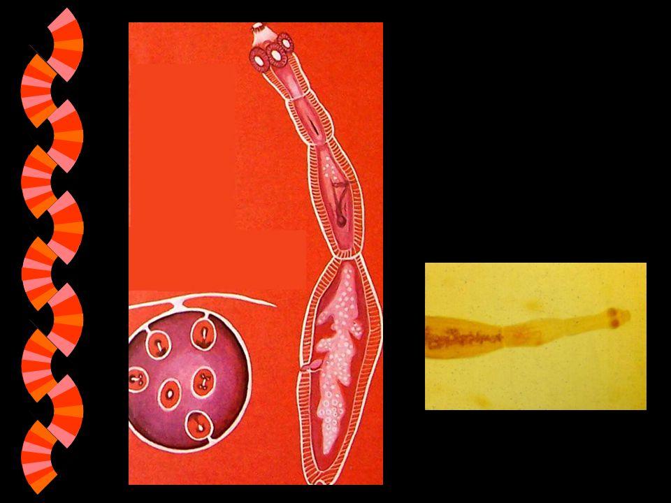 w Larvy měchožila se zapouzdřují v plicích, játrech, dokonce i v srdci nebo v mozku mezihostitele. w Vznikají tu cysty plné zárodků, které se někdy ne