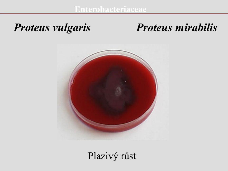 Enterobacteriaceae Genus Enterobacter E.cloacae E.aerogenes E.sakazakii E.gergoviae E.cloacae - Klinický význam Močové infekce Rané infekce (kolonizac
