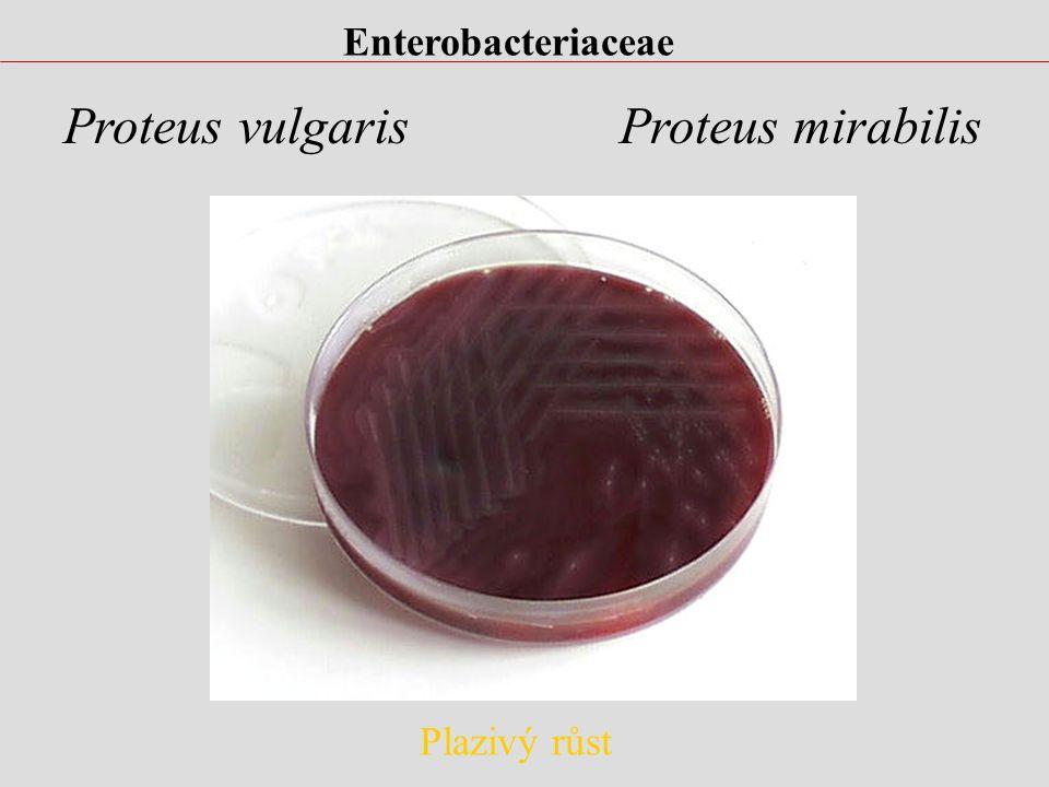 Enterobacteriaceae Proteus vulgaris Proteus mirabilis Plazivý růst