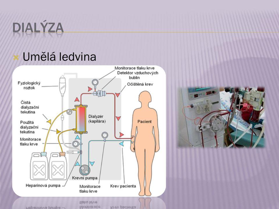  Umělá ledvina