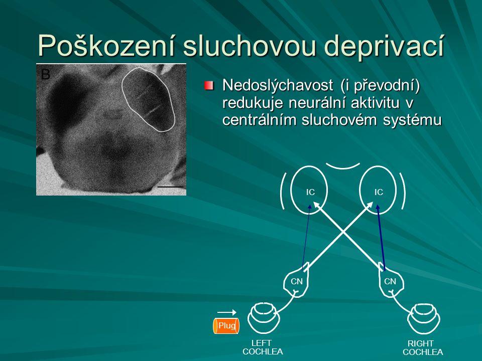CN IC RIGHT COCHLEA LEFT COCHLEA CN Plug Poškození sluchovou deprivací Nedoslýchavost (i převodní) redukuje neurální aktivitu v centrálním sluchovém s