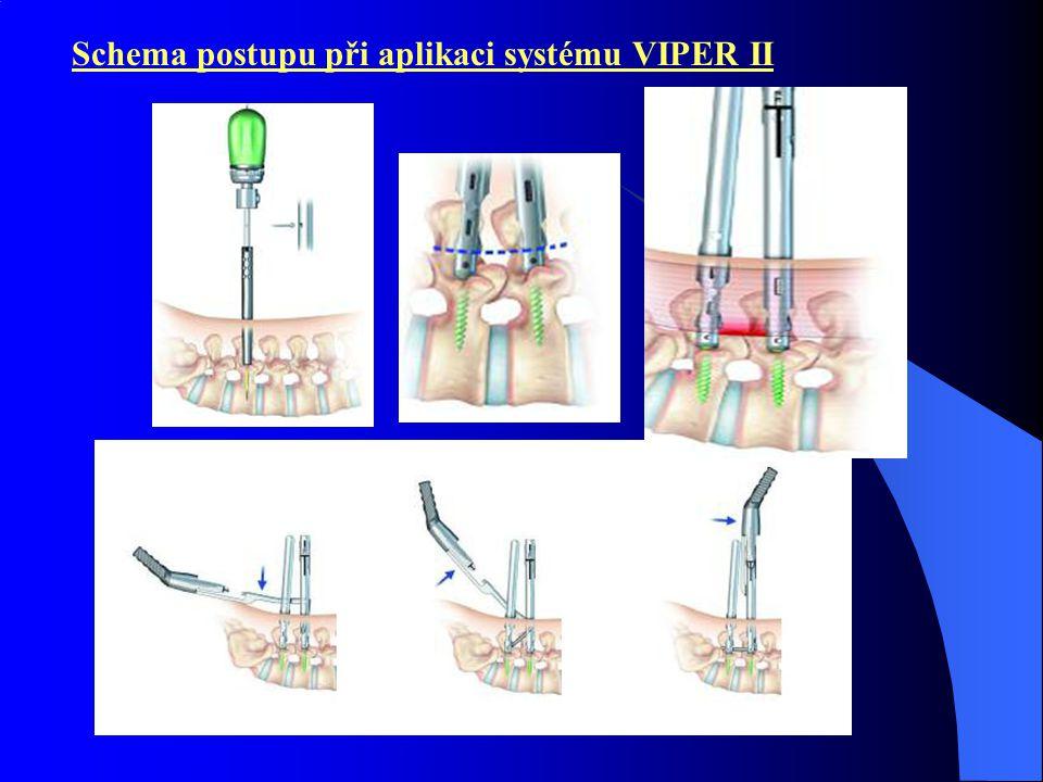 Schema postupu při aplikaci systému VIPER II