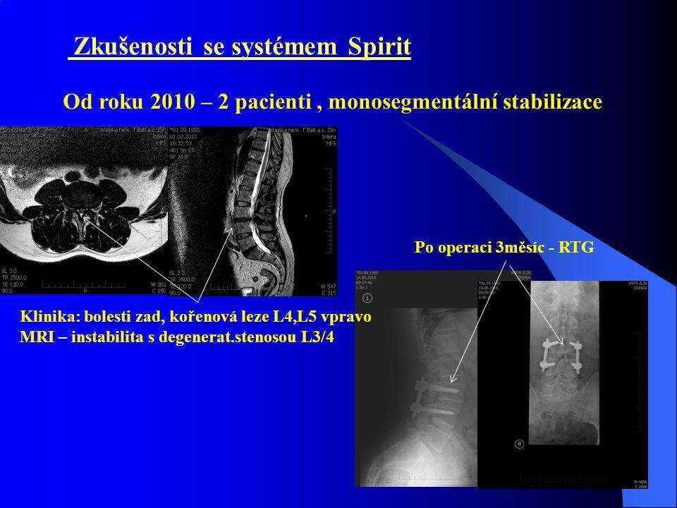 Zkušenosti se systémem Spirit Klinika: bolesti zad, kořenová leze L4,L5 vpravo MRI – instabilita s degenerat.stenosou L3/4 Po operaci 3měsíc - RTG Od roku 2010 – 2 pacienti, monosegmentální stabilizace