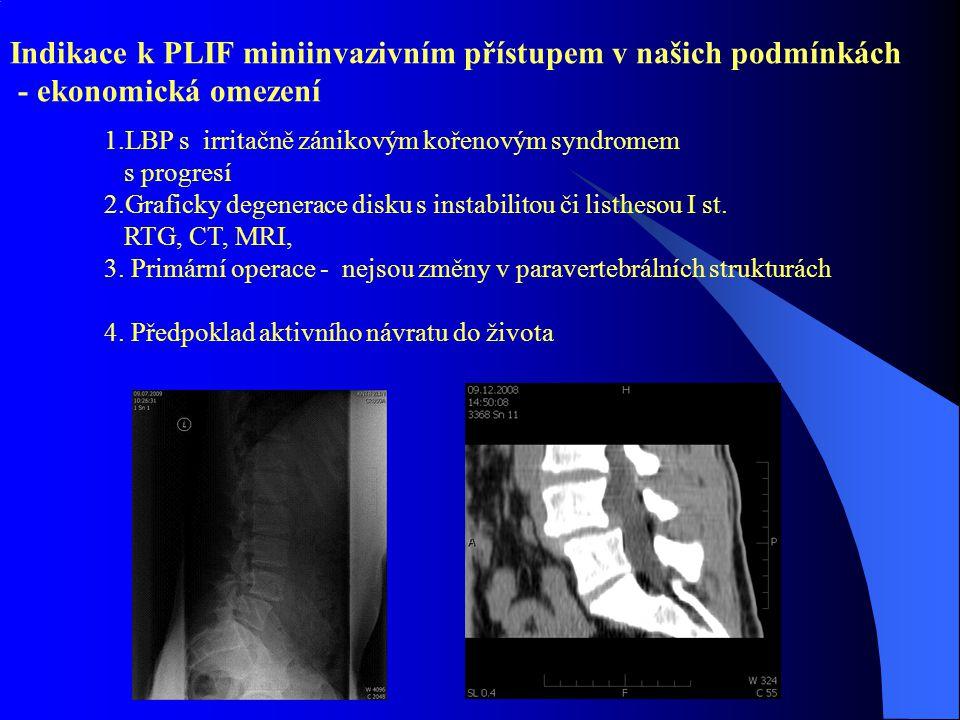 Indikace k PLIF miniinvazivním přístupem v našich podmínkách - ekonomická omezení 1.LBP s irritačně zánikovým kořenovým syndromem s progresí 2.Graficky degenerace disku s instabilitou či listhesou I st.