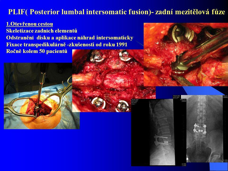 PLIF( Posterior lumbal intersomatic fusion)- zadní mezitělová fůze 1.Otevřenou cestou Skeletizace zadních elementů Odstranění disku a aplikace náhrad intersomaticky Fixace transpedikulárně -zkušenosti od roku 1991 Ročně kolem 50 pacientů