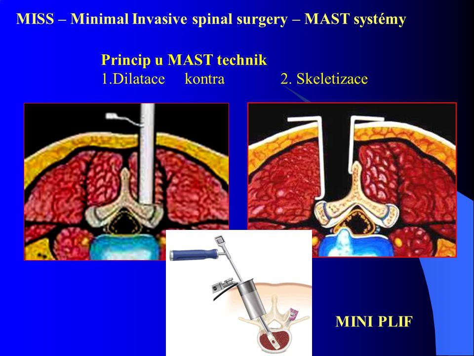 MISS – Minimal Invasive spinal surgery – MAST systémy Princip u MAST technik 1.Dilatace kontra 2. Skeletizace MINI PLIF