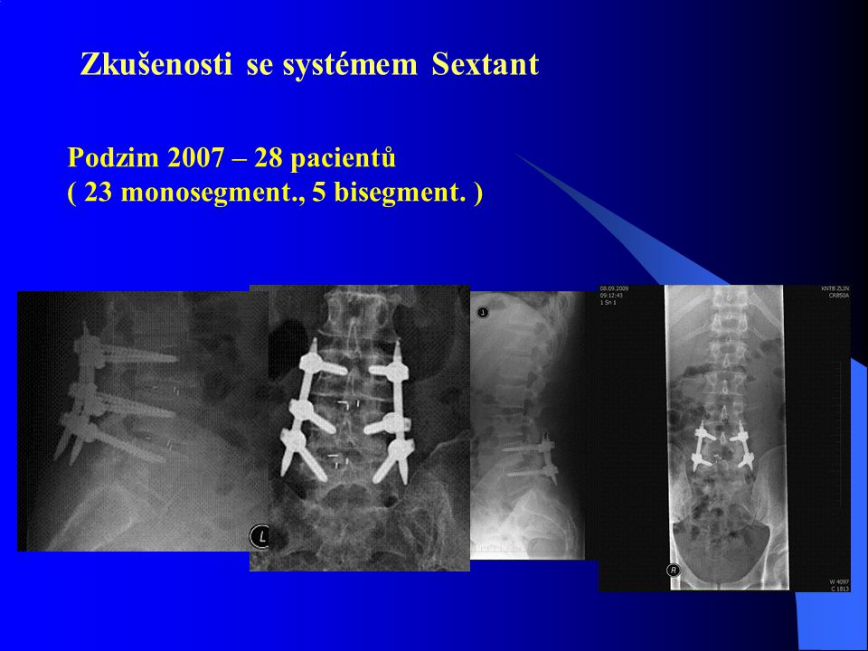 Zkušenosti se systémem Sextant Podzim 2007 – 28 pacientů ( 23 monosegment., 5 bisegment. )