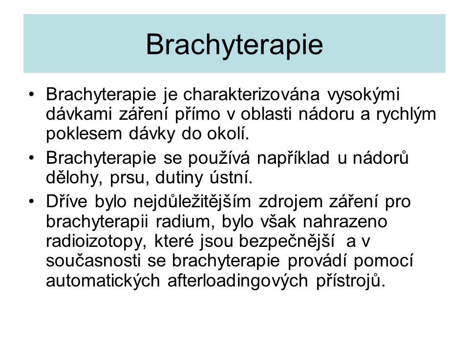 Brachyterapie Brachyterapie je charakterizována vysokými dávkami záření přímo v oblasti nádoru a rychlým poklesem dávky do okolí.