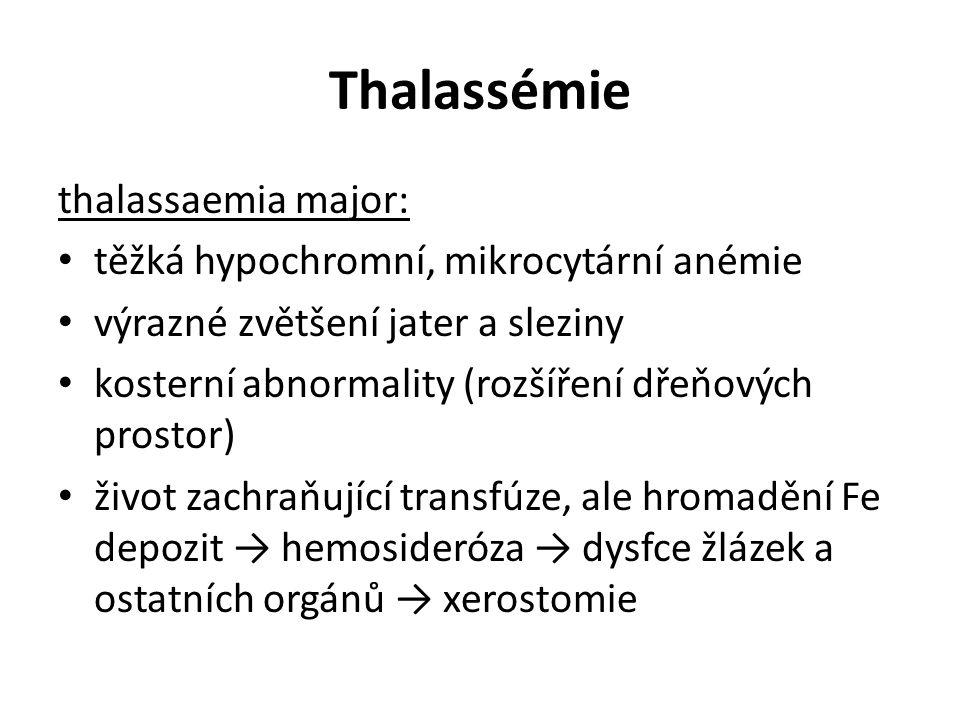 Thalassémie thalassaemia major: těžká hypochromní, mikrocytární anémie výrazné zvětšení jater a sleziny kosterní abnormality (rozšíření dřeňových pros