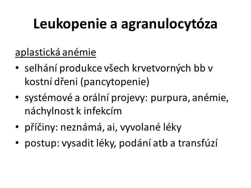 Leukopenie a agranulocytóza aplastická anémie selhání produkce všech krvetvorných bb v kostní dřeni (pancytopenie) systémové a orální projevy: purpura