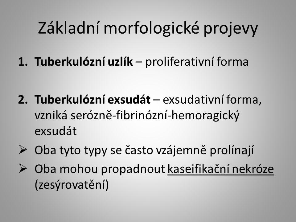 Základní morfologické projevy 1.Tuberkulózní uzlík – proliferativní forma 2.Tuberkulózní exsudát – exsudativní forma, vzniká serózně-fibrinózní-hemora