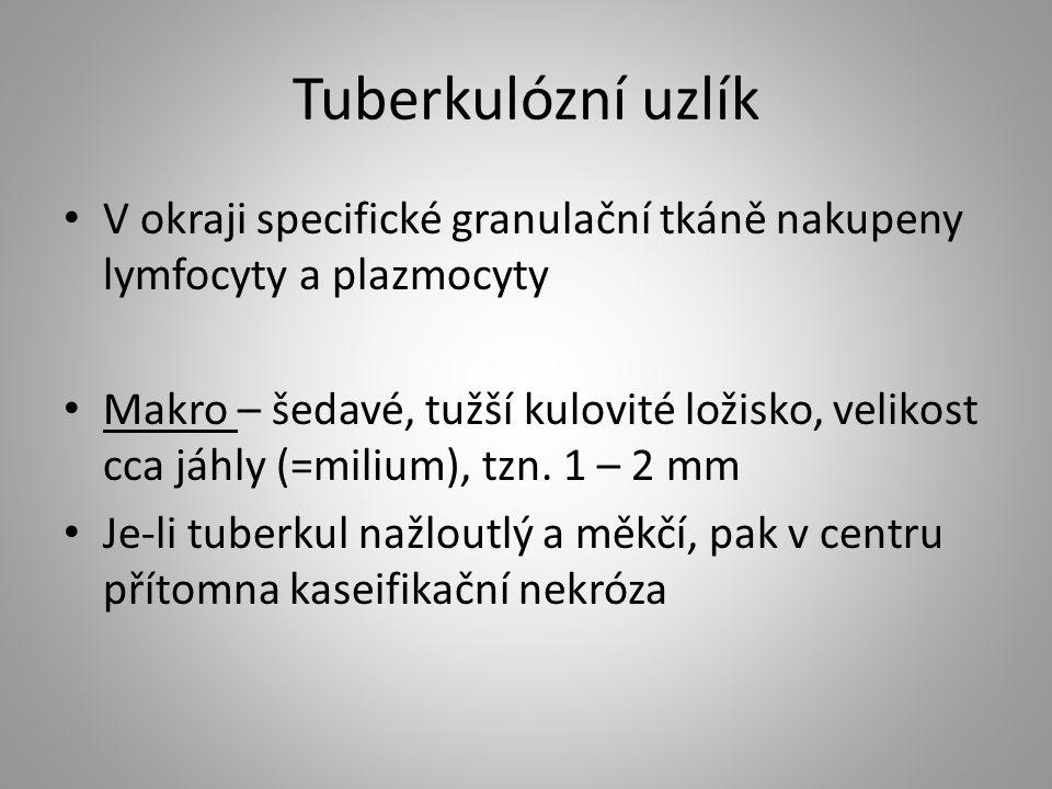 Tuberkulózní uzlík V okraji specifické granulační tkáně nakupeny lymfocyty a plazmocyty Makro – šedavé, tužší kulovité ložisko, velikost cca jáhly (=m