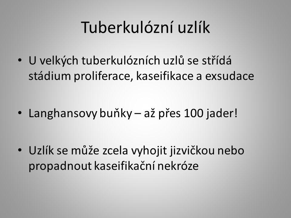Tuberkulózní uzlík U velkých tuberkulózních uzlů se střídá stádium proliferace, kaseifikace a exsudace Langhansovy buňky – až přes 100 jader! Uzlík se
