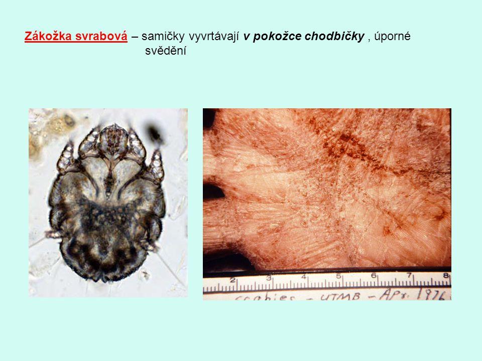 Zákožka svrabová – samičky vyvrtávají v pokožce chodbičky, úporné svědění