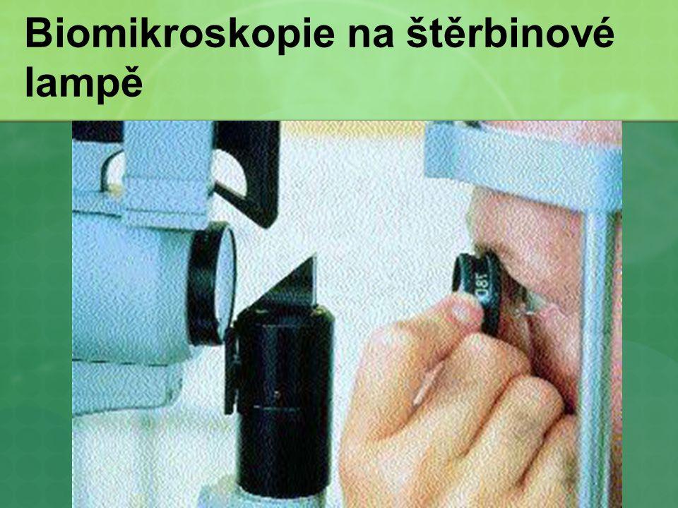 Biomikroskopie na štěrbinové lampě