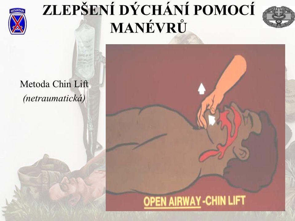 ZLEPŠENÍ DÝCHÁNÍ POMOCÍ MANÉVRŮ Metoda Chin Lift (netraumatická)